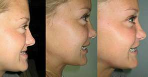 Before & After Corrective jaw surgery