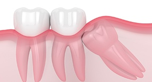 Wisdom tooth trapped under gums and pushing into other teeth