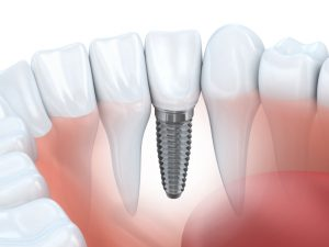 dental implants in South Eastern Ohio