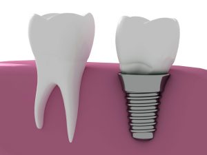 Your implant dentist in Marietta will replace your missing teeth.