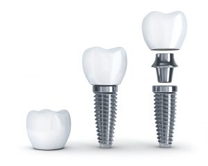 Are you considering visiting an implant dentist in Cambridge?
