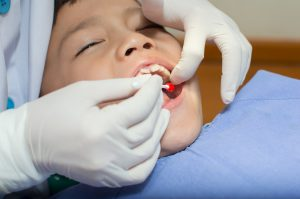 Sleeping child receiving oral surgery