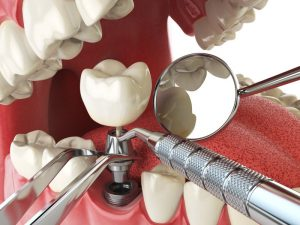 model of mouth receiving dental implant