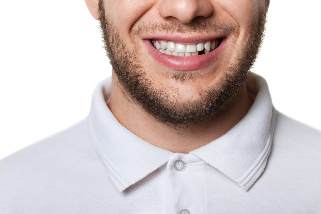 man smiling with tooth missing