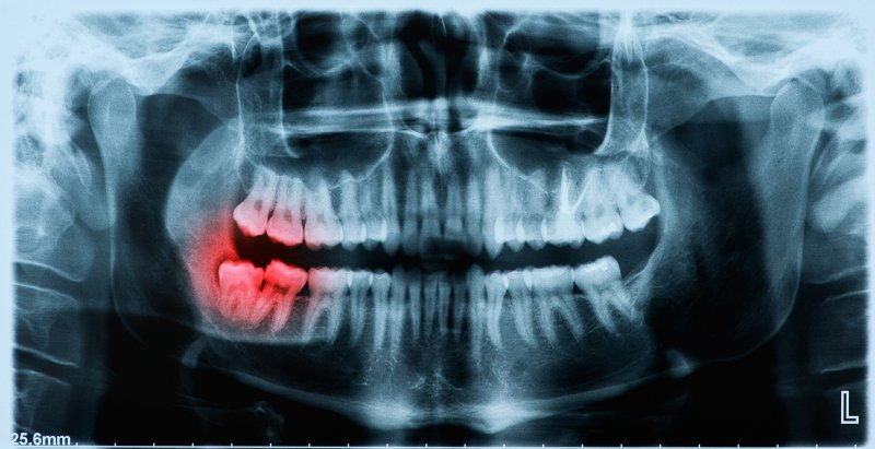 X-ray image of wisdom tooth pushing molar out of place