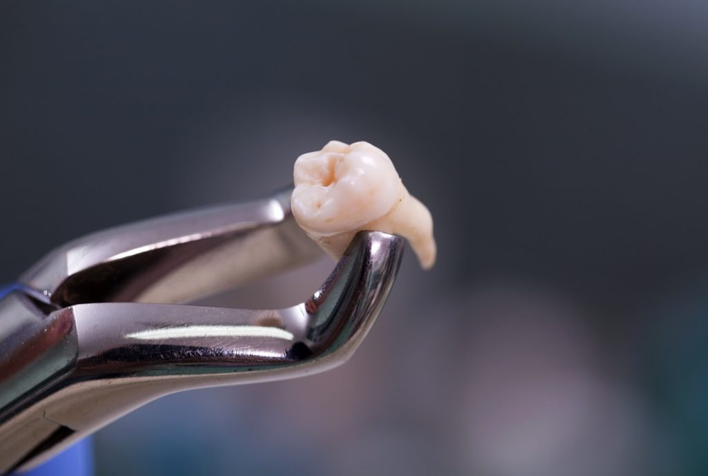 Molar tooth extraction in Marietta, OH
