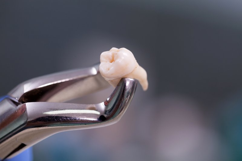 an extracted tooth held between a pair of dental pliers