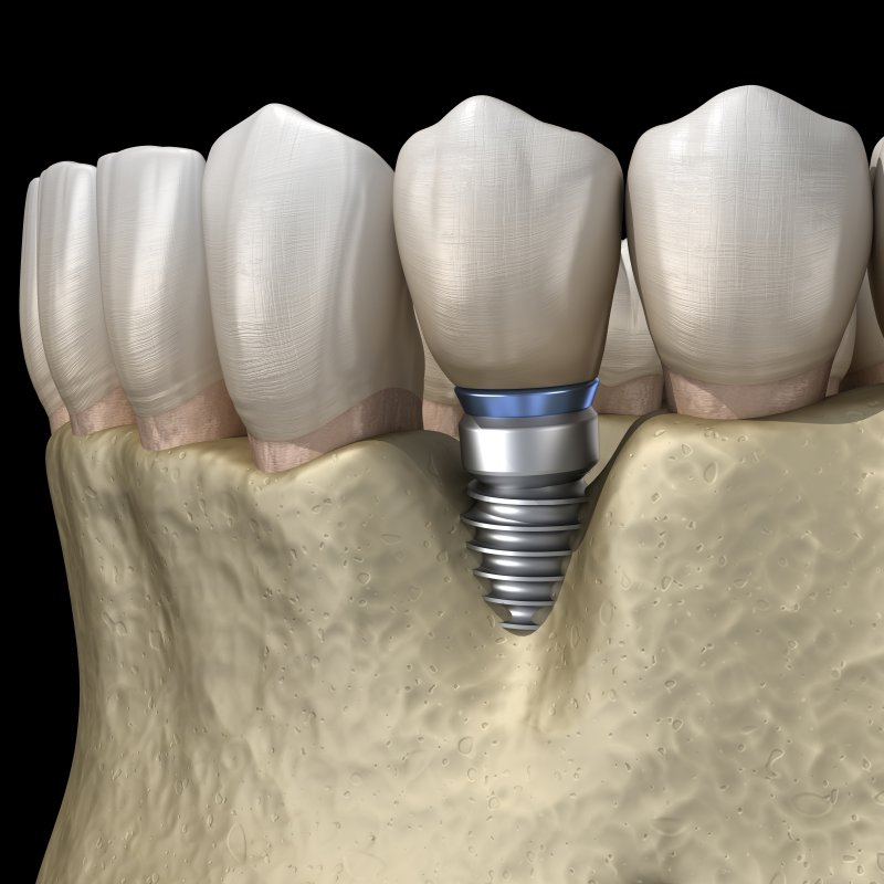 a digital image of a dental implant situated between two healthy teeth on the lower arch