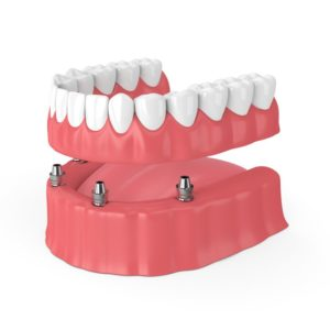 jaw preservation with implant-retained dentures