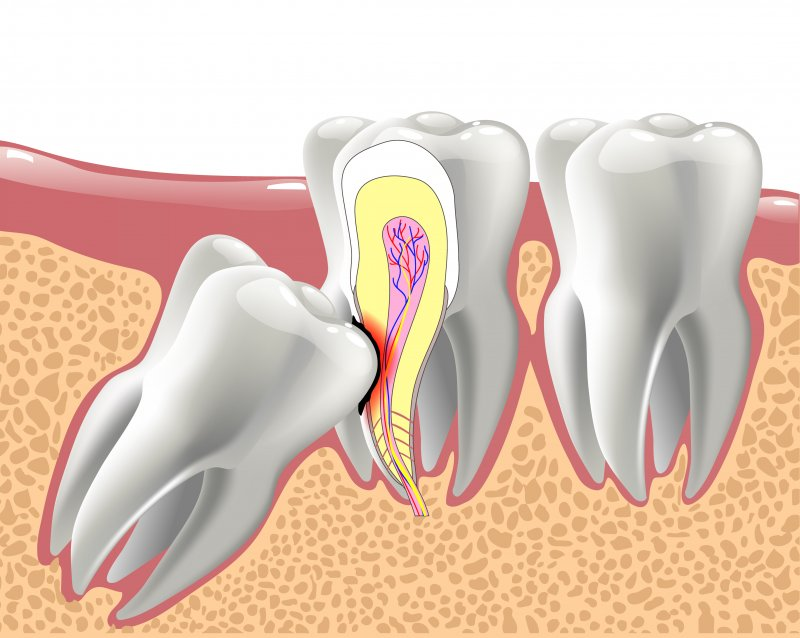 Impacted wisdom tooth growing into roots of other teeth